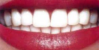 diş beyazlatma 2